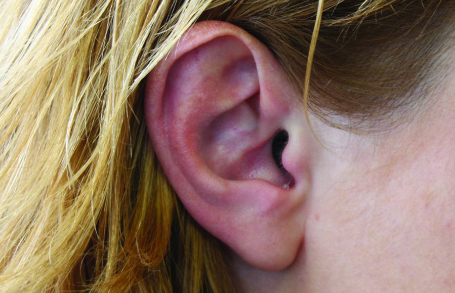image of ear to illustrate hearing care services